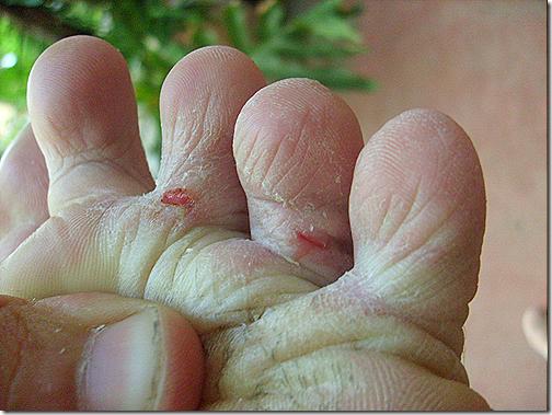 El tratamiento del hongo de las uñas por el láser de la foto antes y después